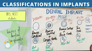 dental implant types and classification made easy!