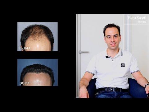Fregare vitamine per capelli in sostiene la crescita di capelli