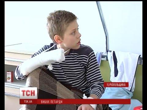Вибух петарди в руках дитини на Тернопільщині. ПОДРОБИЦІ (ВІДЕО)