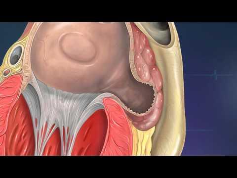 Tabletten von Hypertonie in IHD