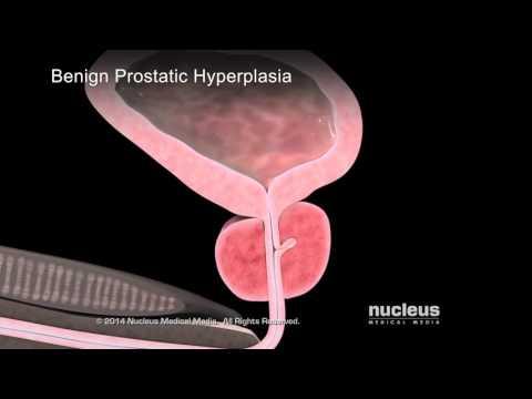 Que masajear la glándula prostática