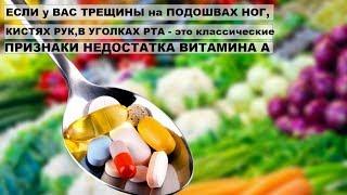 ЧЕМ ОПАСЕН ДЕФИЦИТ ВИТАМИНА А? Трещины,хрупкие ногти и сыпь на теле - признаки дефицита витамина А.