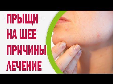 Гепатит центр красноярск