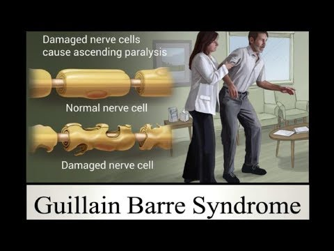 Guillain Barre Syndrome (GBS) - Causes, Sign and Symptoms, Diagnosis, Treatment