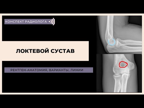 Рентген-анатомия локтевого сустава: анатомия, варианты, соотношения структур