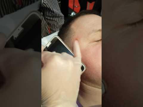 Kung ito ay posible upang bisitahin ang solarium na may facial pigmentation