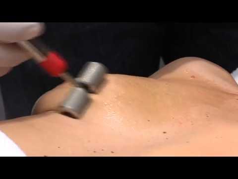 Klinika w Nowosybirsku powiększania piersi