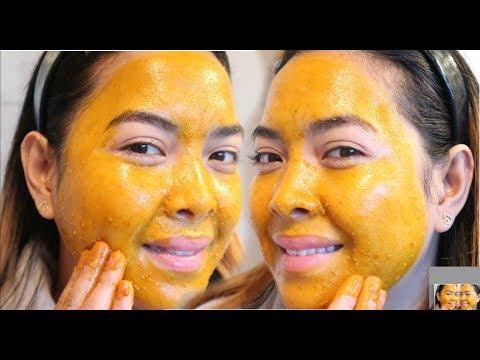 Laser resurfacing facial pigmented spot review