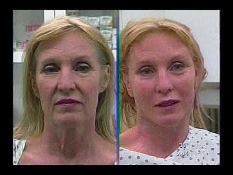 ThreadLift on The Today Show With Dr. Mulholland I SpaMedica TV Video Thumbnail