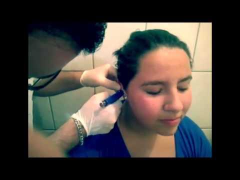 Rimedio di gente di trattamento di neurodermatitis