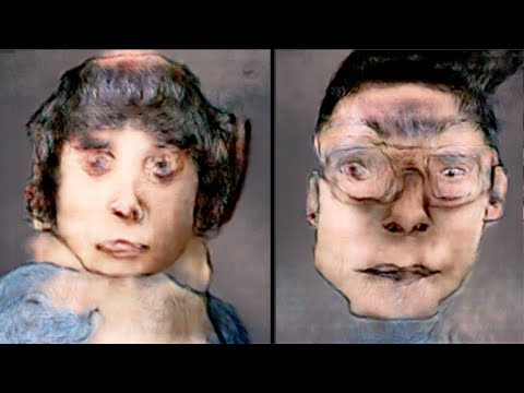 La rf-faccia che si solleva è il sollevamento di faccia noninvasivo