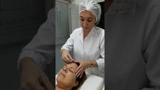 Acupuntura para tratar a Fibromialgia (2º vídeo)