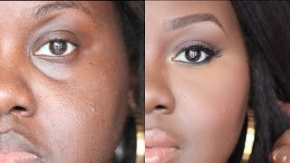 How to Conceal Deep Set Under Eyes: [Detailed talk through tutorial]   Chanel Boateng