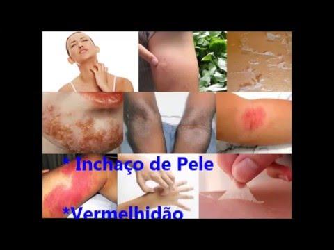 Eczema a mãos porque arranhões