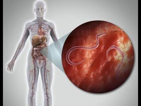 Emberben a szalagféreg fertőzés jelei