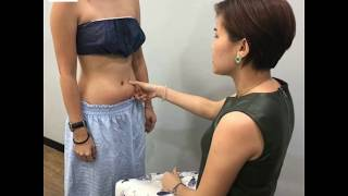 REMOVING STUBBORN FAT FROM BELLY
