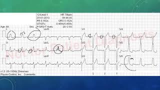 EKG befunden leicht gemacht, EKG Beispiele