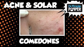 Just Blackheads: A Dr Pimple Popper SoftPop Medley