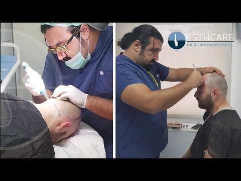 مشفى إست كير لزراعة الشعر l تجربة السيد محمد تقنية أقلام تشوي 5200 بصيلة