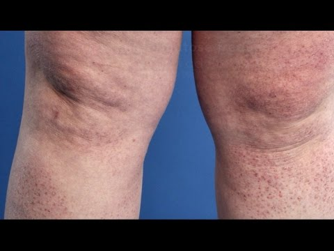 Le psoriasis de la raison de lapparition et le traitement de la photo