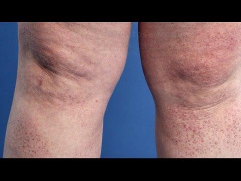 Atopitchesky la dermatite des helminthes chez les enfants
