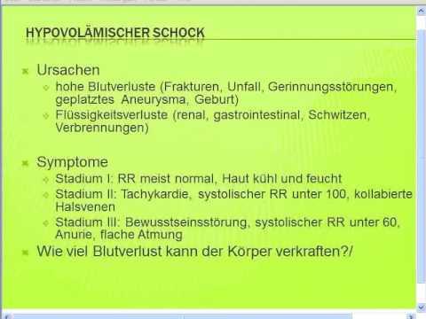 Handbuch hypertensive und Osipova.