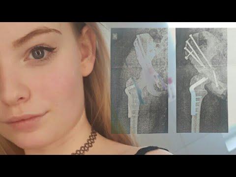 Taubheit des Fingers in Osteochondrose Bewertungen