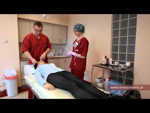 Chirurgia raka piersi Niemcy