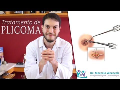 Recomandări clinice pentru tratamentul papilomului