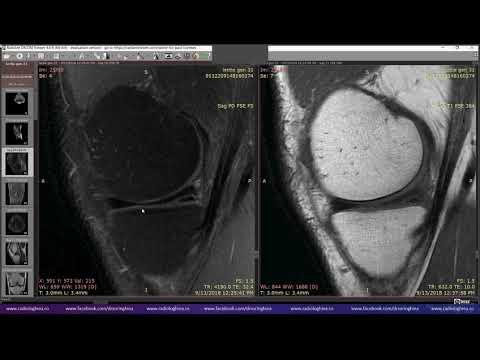 Manifestarea unei boli a articulației șoldului