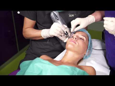 Ce unguente ajută la întinderea articulației umărului