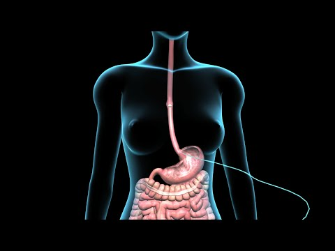 Video PEG | Feeding Tube | Nucleus Health