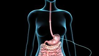 PEG | Feeding Tube | Nucleus Health