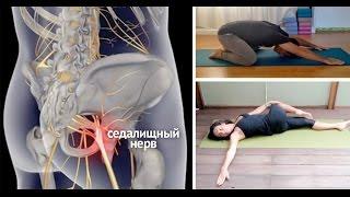 Смотреть онлайн Гимнастика для ишиаса: упражнения