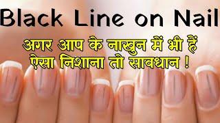Black Line On Nail । अगर आप के नाखुन में भी हैं ऐसा निशाना तो सावधान
