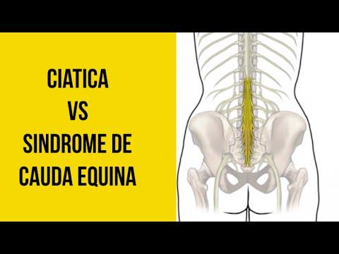 Signos de herniación de la columna cervical intervertebral