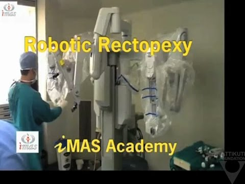 Robotic Rectopexy by Parveen Bhatia