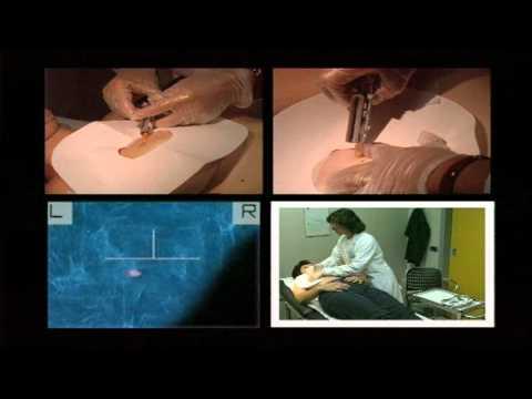 Malattia del cancro della prostata adenoma