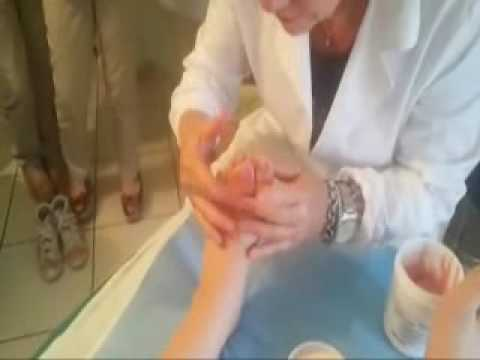 Osteoartrite caviglia 1 grado rimedi trattamento popolari