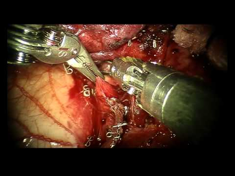 Video daVinci Robotic Pulmonary Left Upper Lobectomy for Lung Cancer Treatment VATS