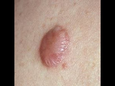 Video How to Get Rid of a Stubborn Keloid