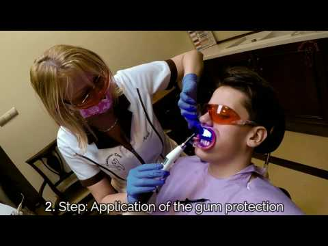 Bleaching with Biolase Laser, snow-white teeth in 20 minutes! Dental Clinic Hungary, Diamant-Dent