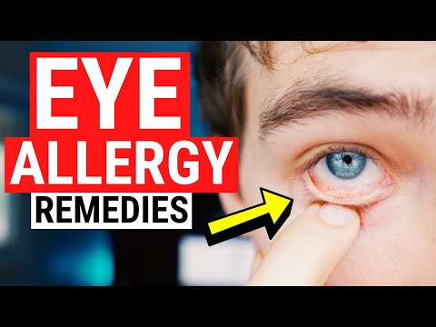 Eye Allergy Remedies - Tips for Itchy and Watery Eyes
