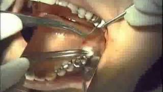 Detailed product video for Morita's Foundation Bone Augmentation material. Features clinical cases and scientific based research pertaining to how it…