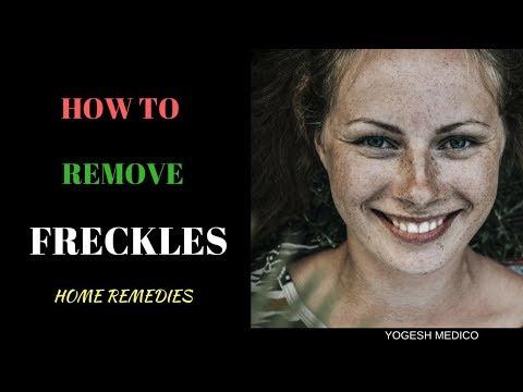 Upang makatulong na mapupuksa ang freckles