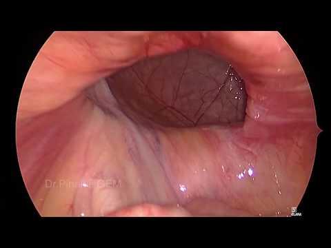 A faggyúmirigy elzáródása a péniszen