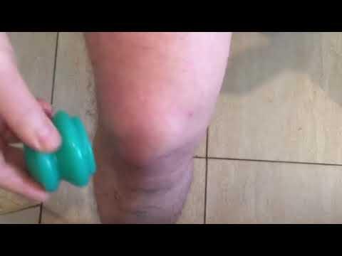 Лечение коленного сустава вакуумными банками