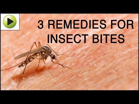 Video Insect Bites - Natural Ayurvedic Home Remedies