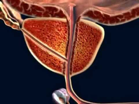 Quali sono i sintomi della prostata quando refrigerati