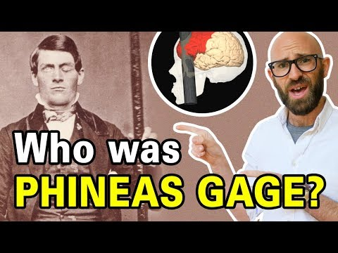 The Remarkable Tale of Phineas Gage
